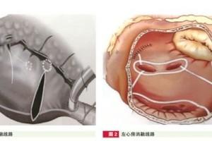 安贞医院心脏手术同期Cox迷宫Ⅳ手术医治房颤经历