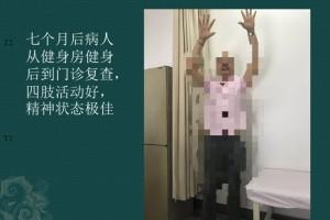一例巨大脑室内肿瘤的手术医治——手术后七个月患者从健身房快乐地来到门诊
