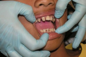 带牙套的优劣带牙套的好处